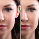 Wrinkle and Spots Removal