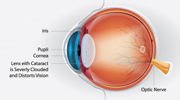 Retina Illustration