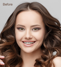 Braces Removal Before