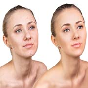 Skin Retouching Services