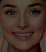 Braces Removal Services