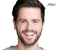 Red-eye Removal After