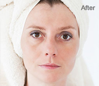 Removing Dark Spots After